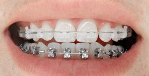 BAGUES EXTERNES MIXTES d'un traitement orthodontique pour adolescents