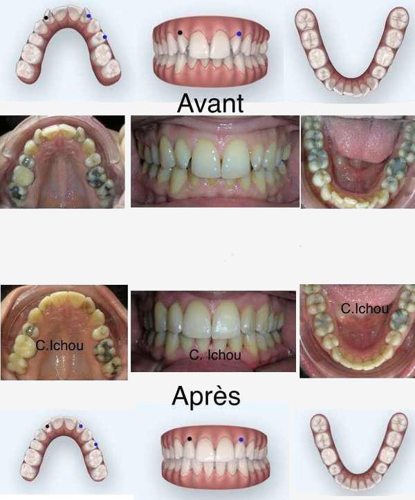 Un cas de traitement Invisalign avant et après