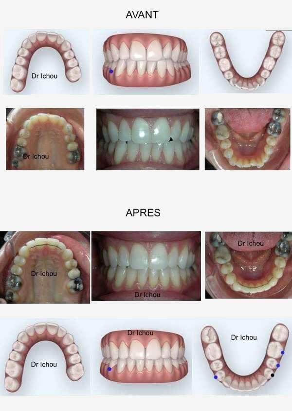 Orthodontie invisible Invisalign avant apres