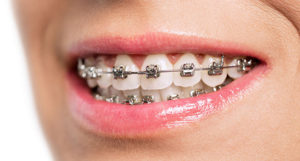 BAGUES EXTERNES EN METAL en orthodontie pour adolescents