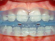 Le traitement d'un ÉDUCATEUR FONCTIONNEL en orthodontie pour enfants