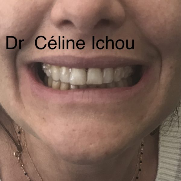Port d'aligners en orthodontie invisible pour adultes