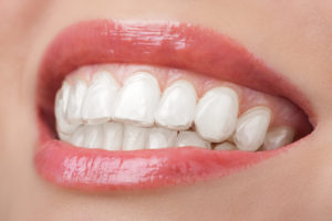 Le traitement Invisalign en orthodontie pour adultes
