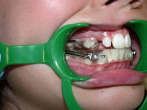 Un activateur en orthodontie enfants