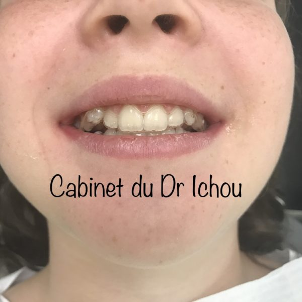 TRaitement Invisalign en orthodontie pour adolescent