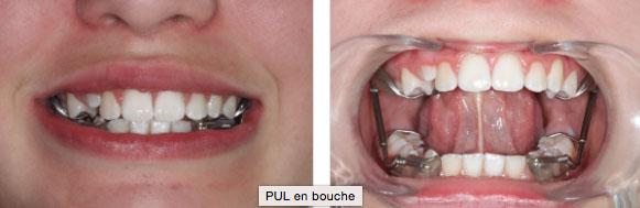 Le port d'un pul en orthodontie pour enfants